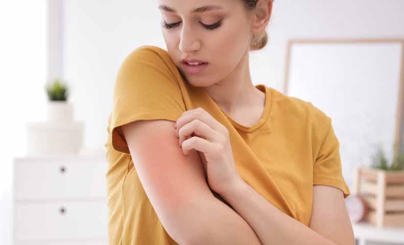 rashの意味と使い方